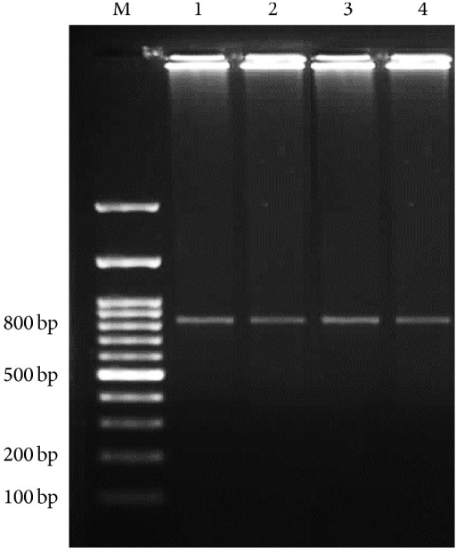 Secondary stage of nested-PCR findings on agarose gel. Lane M, DNA size marker. Lane 1, positive control for Cryptosporidium. Lanes 2–4, positive Cryptosporidium samples (830 bp).
