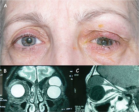 External appearance of the swollen left upper eyelid causing mechanical ptosis (A). On magnetic resonance imaging, an intraorbital, extraconal lesion is evident in both coronal T2-weighted image (B) and sagittal T1-weighted image (C)