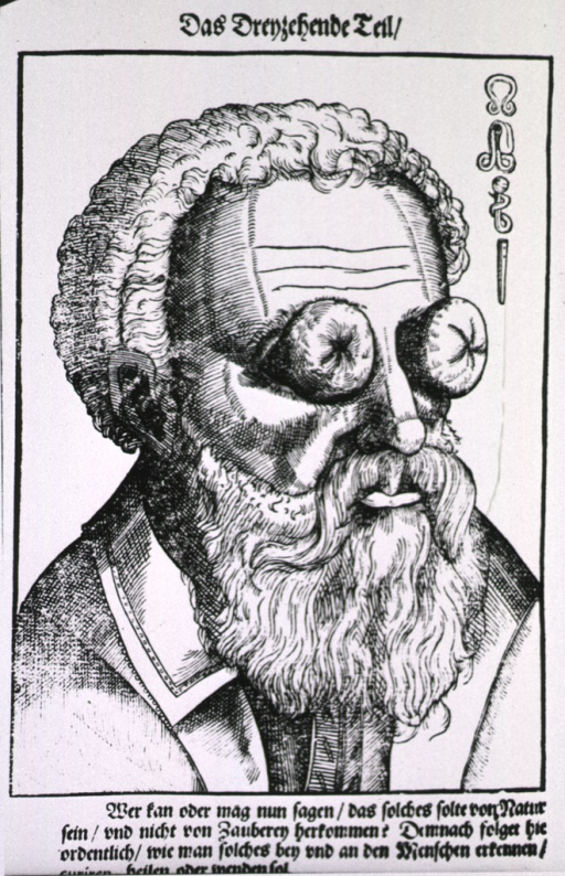 <p>Close-up of the head of a man with large growths on his eyes; symbols in upper right corner (Bartisch believed this man's condition was the result of &quot;witchcraft.&quot;)</p>