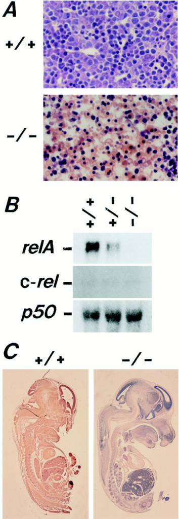 Liver degeneration and the absence of relA transcripts and  RelA protein in relA−/− embryos. (A) Histological features of livers of  ED14.5 relA+/+ and relA−/− embryos. In the liver of a relA+/+ embryo, hepatocytes with large cell size and light nuclear staining are mixed  with the hematopoietic cells with dark nuclear staining. In the liver of  relA−/− embryos, hepatocytes are disintegrated, while the hematopoietic cells are apparently normal. Magnification is 240-fold. (B) RNA blot  analysis of ED13.5 relA+/+, +/−, and −/− embryos. 10 μg of total  RNA were loaded per lane and analyzed with the relA, c-rel, relB, and p50  cDNA probes. relA transcripts were present in the relA+/+ and +/−  embryos, but not in the relA−/− embryos. The relA+/+, +/− and −/−  embryos expressed similar amounts of c-rel and p50 transcripts. No relB  transcripts were detected in ED13.5 embryos (data not shown). (C) RelA  protein in ED13.5 relA+/+ and relA−/− embryos. With rabbit antiRelA antibody and the ABC method, RelA protein is ubiquitously detected in the relA+/+ embryo, but is completely absent in the relA−/−  embryo. Magnification is eightfold.