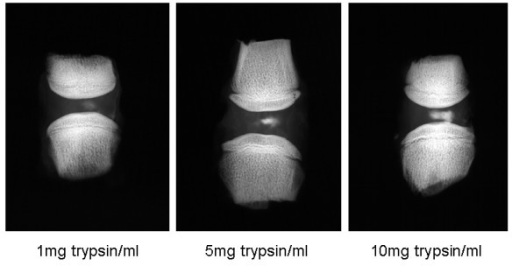 Radiographic images of motion segments injected with radio-opaque medium 72 hours after incubation with 1, 5 or 10 mg/ml trypsin.