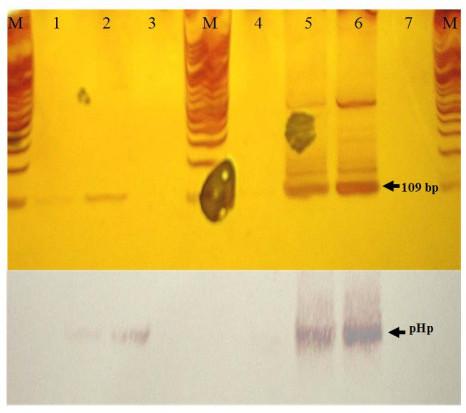 Polymerase chain reaction (PCR) amplification and hybridization of biopsy samples. A) PCR products of the 109-bp fragment of 16S rRNA obtained from H. pylori. Line: 1) gastric remains I; 2) gastric remains II; 3) tongue-soft palate; 4) brain; 5) H. pylori ATCC 43504; 6) H. pylori 84–183, and 7) negative control reaction. M = Molecular weight marker (100-bp DNA ladder). B) Hybridization of PCR products with pHp probe.