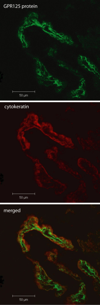 Immunohistochemistry using an antibody directed against the GPR125 protein (green). GPR125 was again localized to the choroid plexus cells using the epithelial cell-specific marker cytokeratin (red). This specific staining was observed in sections from the brain of a 3 week old rat, thus confirming expression of GPR125 in pre-adolescence.