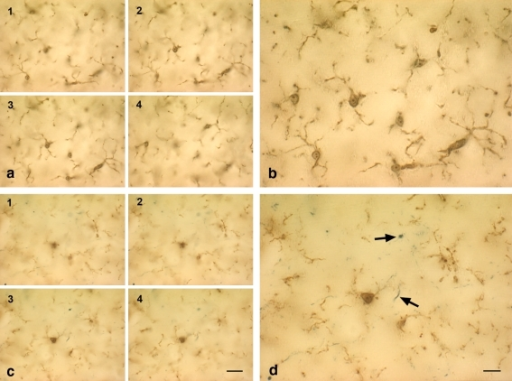 Microglial degeneration can occur independent of age and is evident in cases of young subjects with minimal tau pathology. Double-label immunohistochemistry for microglia (iba1) and tau (AT8) is shown in the hippocampus of two young subjects with no (b) or minimal (d) tau pathology (case nos. 1, 5). a, c Focus series of four individual micrographs taken 10–15 μm apart, and reassembled into composite images in b and d. Note the difference in microglial morphology in the two young subjects, one of which shows minimal tau pathology evident as neuropil threads (arrows in d). Microglia in b show normal ramified appearance but are fragmented in d. Scale bars 20 μm (a, c); 10 μm (b, d)
