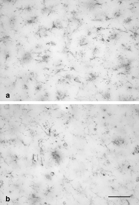 Single-label (iba1) staining of microglia in two subjects with Down's syndrome (case nos. 14, 15) is shown in a and b, respectively. Both micrographs reveal a total loss of microglial cell integrity and show presence of microglial cell debris throughout; middle temporal gyrus (a) and entorhinal cortex (b). Scale bar 50 μm