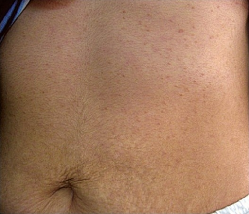 Multiple skin-to tan-colored flat topped papules on the upper abdomen and anterior chest