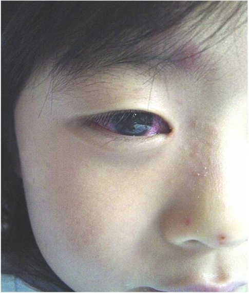 Hyperemic conjunctiva and skin rash over the right side of the face.