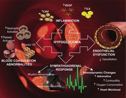 Mechanisms by which hypoglycemia may affect cardiovascular events. Hypoglycemic events may trigger inflammation by inducing the release of C-reactive protein (CRP), IL-6, and vascular endothelial growth factor (VEGF). Hypoglycemia also induces increased platelet and neutrophil activation. The sympathoadrenal response during hypoglycemia increases adrenaline secretion and may induce arrhythmias and increase cardiac workload. Underlying endothelial dysfunction leading to decreased vasodilation may also contribute to cardiovascular risk.