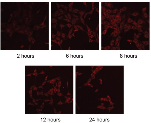 LSCM images showing mouse skin fibroblasts incubated with rhodamine B-labeled microemulsion for different incubation times.Abbreviation: LCSM, laser scanning confocal microscopy.