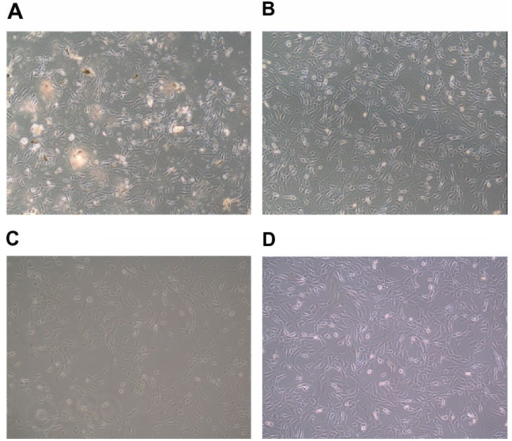 Influence of incubation with different formulations: (A) tincture; (B) aqueous suspension; (C) microemulsion; and (D) microemulsion without Evo and Rut on cellular morphology.