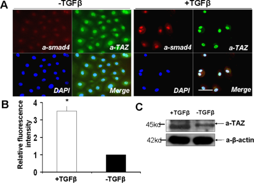 TAZ is responsive to TGFβ signal in conjunctiva epithelial cells. A: Fluorescent signals of TAZ protein (green) and smad4 (red) were upregulated after TGFβ treatment. Scale bar is 20 µm. B: Relative quantitation of the green fluorescent intensity of TAZ protein. Data were represented as mean±se, * p<0.01, ANOVA. C: Cell lysate of the epithelial cells with or without TGFβ treatment were blotted by anti-TAZ. Expression of TAZ protein was upregulated in TGFβ treated cells.