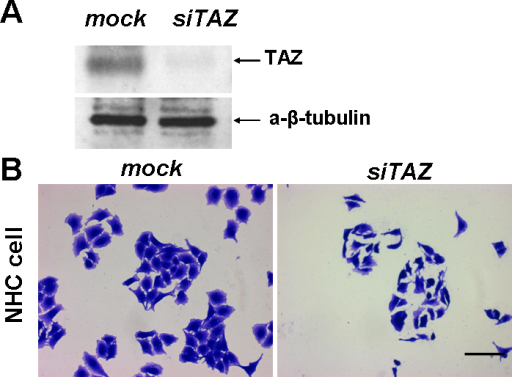 TAZ siRNA induced a depletion of TAZ protein in NHC keratinocytes. A: Anti-TAZ blotting of the NHC cells which were treated by 15 PM TAZ siRNA or mock siRNA. B: Pictures show representative fields of cells treated by mock or TAZ targeting siRNA. NHC cells were stained by commassie brilliant blue. Scale bar is 10 um.