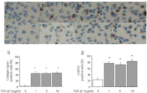 Immunocytochemistry findings of collagen type I and HSP47 expression in A549 cells incubated for 48 h with various concentrations of TGF-β1. Collagen expression: 0 (a), 1 (b), 5 (c), and 10 ng/ml (d) of TGF-β1. HSP47 expression: 0 (e), 1 (f), 5 (g), and 10 ng/ml (h) of TGF-β1. Original magnification, x400. Positive rates of collagen type I (i) and HSP47 (j) immunostaining of A549 cells after incubation with TGF-β1 (0, 1, 5, 10 ng/ml) for 48 h. Positive rate of stained cells are significantly increased by TGF-β1 compared with control. Values are means ± SEM of 5 experiments.