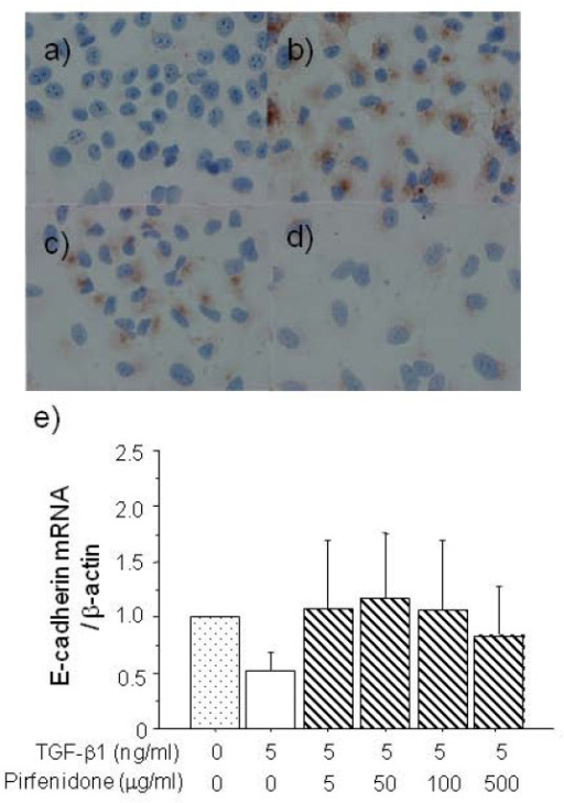 Immunocytochemistry of fibronectin expression in A549 cells stimulated without (a) or with 5 ng/ml (b, c, d) of TGF-β1 without (b), or with 100 (c) or 500 μg/ml (d) of pirfenidone for 48 h. Original magnification: x400. Pirfenidone decreased fibronectin over-expression induced by TGF-β1. Loss of epithelial marker E-cadherin mRNA in A549 cells caused by TGF-β1 (5 ng/ml) was also normalized by pirfenidone, but the difference did not reach significance (e).