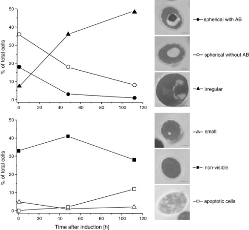 Vacuole morphology changes in P. pastoris GS115 during methanol-induced high-level production of HBsAg. Time-dependent change in the percentage of cells containing large spherical vacuoles with autophagic bodies (AB, ), cells containing large spherical vacuole without autophagic bodies (○), cells containing irregular vacuoles (▴), cells with small vacuoles (Δ), cells without any visible vacuoles (), and apoptotic cells (□). The bar in the electron micrographs of representative cells corresponds to 500 nm.