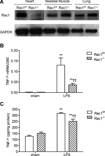 TNF-α expression in Rac1f/f and Rac1–/– adult mouse myocardium during endotoxemia. (A) Rac1 protein expression in heart, skeletal muscle and lungs in Rac1f/f and Rac1–/– mice as determined by Western blot analysis. TNF-α mRNA (B) and protein (C) levels in Rac1f/f and Rac1–/– heart tissues were measured after 2 and 4 hrs of LPS treatment (2 mg/kg, i.p.). Data are means ± S.E.M., n = 3 to 10 per group. **P < 0.01 versus sham Rac1f/f, ††P < 0.01 versus LPS Rac1f/f.