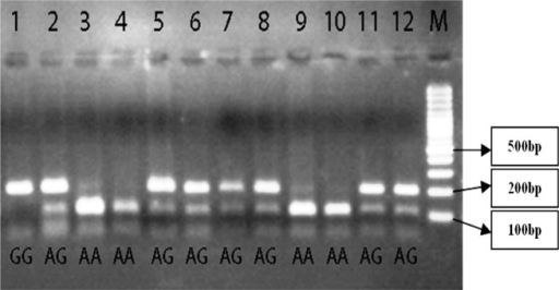 Electrophoresis digested products with AluI restricted enzyme on agarose gel showed different bonds. The marker (M) that used was 100 base pairs