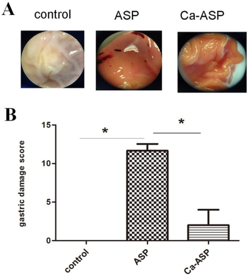 Effect of ASP and Ca-ASP on gastric mucosa of rats.(A) Photographs taken from microscopic examination of the gastric mucosa of mice underwent different treatments. (B) Comparison of the median ulcer index obtained for the gastric mucosa.