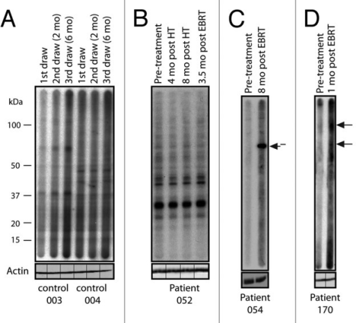 Figure 1. Treatment-associated responses to prostate tumor antigens. Western blot analysis of serum from 2 healthy donor controls and 3 patients with prostate cancer probed against LNCaP cell lysate. The timing of sample collection for each patient is indicated. New seroreactivities are indicated with arrows. (A) Two healthy donor controls showing no seroreactivity. (B) Patient 052, who did not develop an autoantibody response throughout treatment. (C) Patient 054, who was treated with androgen-deprivation therapy (ADT) plus external beam radiation therapy (EBRT) and developed a new response 8 mo post-EBRT. (D) Patient 170, who developed two new responses 1 mo post-EBRT. Each blot was re-probed with actin without the multichannel device to ensure equal protein loading across each lane. The lines indicate the original slot-blot lane for each sample.