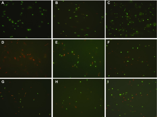 Representative images of stationary-phase B. burgdorferi strain B31 treated with different antibiotics (50 µM) followed by staining in the SYBR Green I/PI assay (×400 magnification). (A) Drug-free control, (B) Doxycycline, (C) Amoxicillin, (D) Daptomycin, (E) Cefoperazone, (F) Clofazimine, (G) Carbomycin, (H) Cefotiam, and (I) Tetracycline.