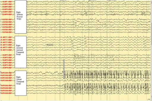 Ictal subdural EEG onset: aura of fear and palpitation.