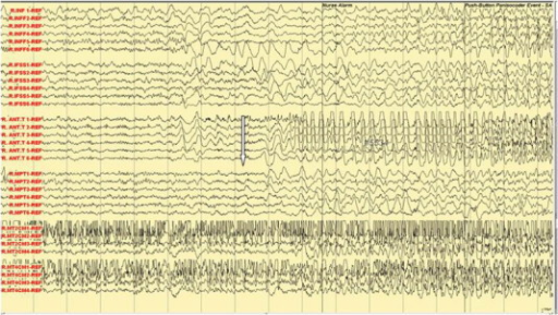 Ictal subdural EEG: manual automatism and lip smacking.