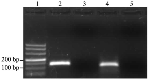 Gel electrophoresis analysis of real-time polymerase chain reaction products. Lane 1, 500 bp molecular size marker; lane 2, GAPDH; lane 3, no template control for GAPDH; lane 4; migration and invasion inhibitor protein (MIIP); lane 5; No template control for MIIP.