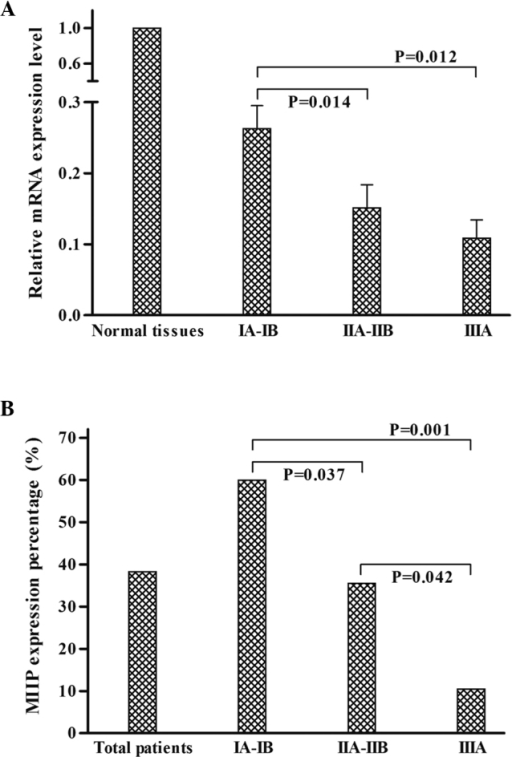 Migration and invasion inhibitor protein (MIIP) expression within tumor stage groups. (A) The relative MIIP mRNA expression levels in normal tissues and tumor tissues at different stages; (B) the percentage of positive MIIP protein expression in all patients and in patients with tumors at different stages.