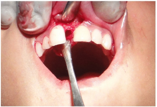 Cavitary space in the nasopalatine region after the granulomatous tissue was curetted out.