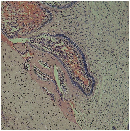 This figure shows an enamel organ type of odontogenic epithelium in association with an odontogenic ectomesenchyme. The hyalinised area containing entrapped cells is considered as dentinoid tissue due to its proximity to the odontogenic epithelium.