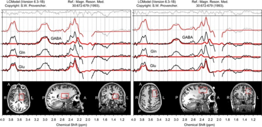 Left subcortical and left frontal voxel positions and representative spectra. The edited spectral fits and the position of the left subcortical and the left frontal voxel in a representative adult subject.