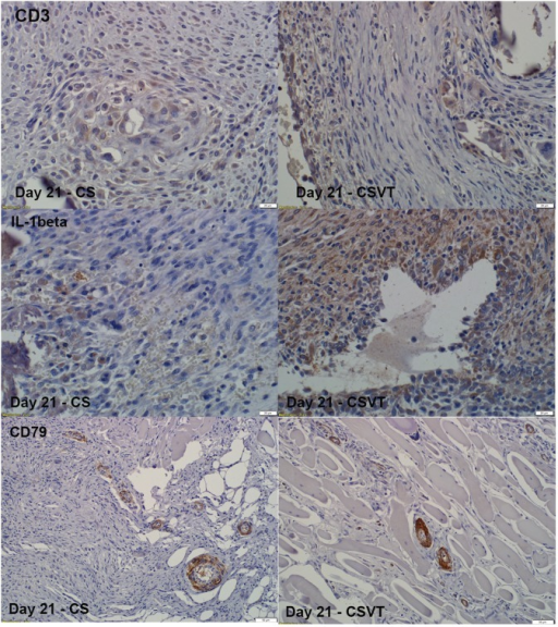 Immunohistochemistry for CD3, IL-1β and CD79 expression.Some expression for these markers were found in the CS and CSVT groups at 21 days (positive signal by brown staining). The same overall expression to the materials was seen at the other time points.