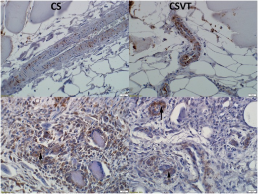 Immunohistochemistry for IL-6 expression.Expression for IL-6 was noted at day 1 (positive signal by brown staining) in adjacent blood vessels as well as at day 7 in endothelial cells and multi-nucleated cells (macrophage lineage) (arrows).