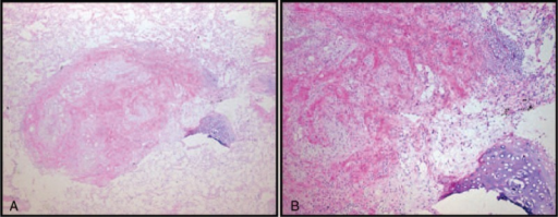Microscopic features of chondroid hamartoma of the lung. (A) Tumor component is identified within the normal lung alveolar structures (H&E stain, ×40). (B) Most of the tumor was composed of proliferating connective tissue. Mature cartilaginous tissue was also identified (right lower side) (H&E stain, ×100). H&E = Hematoxylin & Eosin.