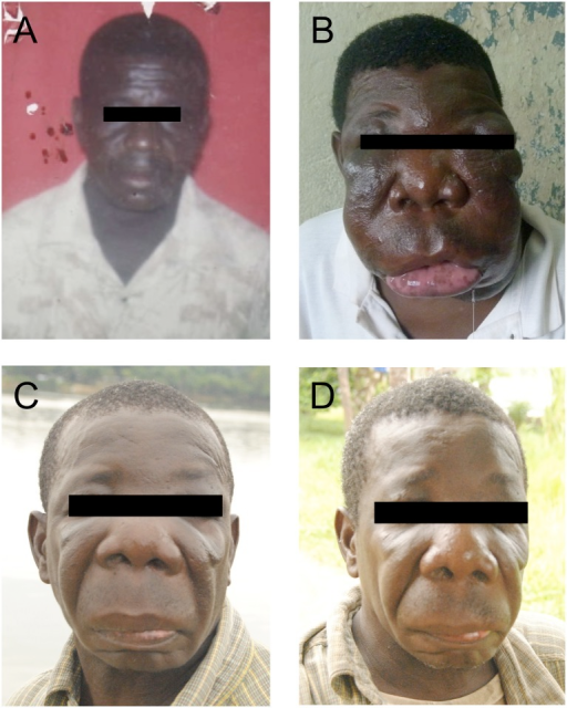 Portrait of the patient before, during and after treatment.(A) The patient is shown as a healthy young adult. (B) Before treatment (month 0). (C) After treatment with fluconazole and terbinafine (month 18). (D) After 14 months without therapy (month 32).