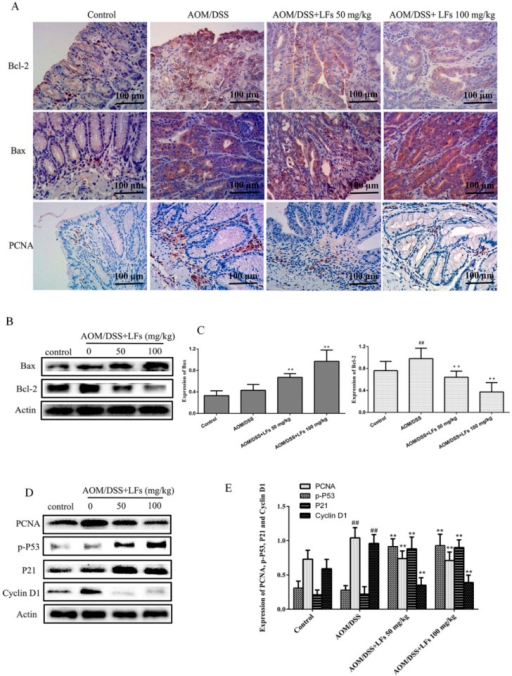 Effects of LFs on expression of proteins associated with proliferation and apoptosis in colonic tissues: (A) Immunohistochemical staining of Bax, Bcl-2, and PCNA in colonic tissues; (B,C) Western blot of Bax and Bcl-2 expression in colonic tissues and semi-quantitative analysis of these proteins. Data are presented as mean ± SD. ** p < 0.01 vs. model, ##p < 0.01 vs. vehicle control; (D,E) Western blot of PCNA, p-P53, P21, and CyclinD1 expression in colonic tissues and semi-quantitative analysis of these proteins. Data are presented as mean ± SD. ** p < 0.01 vs. model, ##p < 0.01 vs. vehicle control.