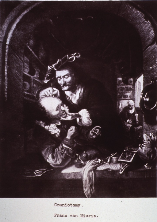 <p>A photograph of a 17th c. Franz van Mieris' painting of a surgeon incising another's head.</p>