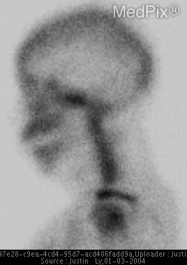 Fig. 2. Spot view of the skull from a skeletal scintigraphy study show focal increased uptake in the area of the clivus.