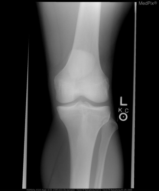 AP radiograph of the knee demonstrates patella alta.