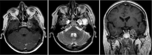 Pre-operative axial T1-weighted MRI with contrast media, axial T2-weighted MRI, and coronal T1-weighted contrast-enhanced MRI show a markedly enhanced lesion located at the site of the previously removed tumor in Meckel's cave