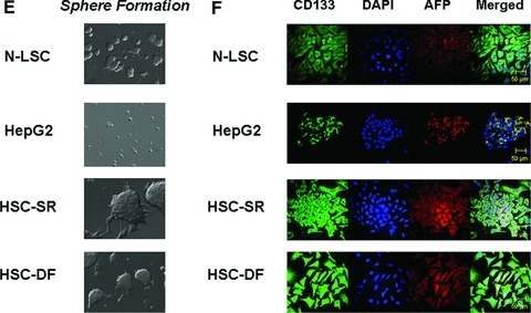 Characterization of Cancer Stem Cells from human HCC tissues. (A) Real-time analysis of Oct 4, CD 133, Nestin, telom-erase, SSEA-4, AFP and CEA mRNA expression in HCC stem cell under self-renewal condition (HSC-SR), under differentiation (HSC-DF) and HepG2 HCC cells. All the markers are significantly up-regulated in HCC cancer stem cells. *P < 0.05 when compared with HepG2 group. (B) FACS analysis of HCC stem cells on day 1 before cell sorting. Results are given as the percentage of Oct-4 and CD133+ cells in the total population. In the histograms, the red line represents staining with Oct-4 or CD133 mAb, and the green lines represent the isotype control-matched mAb. (C) Cell lysates were obtained and immunoblotting analysis was performed for Oct-4, CD133, α-fetoprotein (AFP), CK-7, CK-19 and EpiCam using specific antibodies. The blots were stripped and reprobed for β-actin as a loading control and for quantitation. (D) StemTAG™ Alkaline Phosphatase assays performed at passage 4–6 HSCs and LSCs. HSC-SR and LSCs are maintained in an undifferentiated stage on specific culture dishes, as indicated by the high AP activity, thus confirming the self-renewal within these cells. (E) Formation of tumour spheres in HCC stem cells. In 1% FCS culture media 70–90% of the HSC-SR and HSC-DF became adherent after 7 days, with a minority of floating cells forming spheres composed of three to five cells. After an additional 7 days, the floating spheres were expanded to contain 15–20 HSC-SR cells, with bright appearance and sharp edge. (F) Immunocytochemistry for CD133 and AFP was performed in Normal liver stem cells (N-LSC), HepG2 cells, hepatocellular cancer stem cells growing under self-renewal conditions (HSC-SR) and differentiation conditions (HSC-DF). An increase in CD133 expression along with the enhanced expression of AFP is observed in HSC-SR and HSC-DF cells.