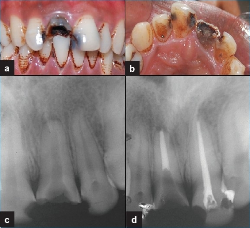 Clinical photographs of the maxillary right central incisor. (a) Facial view. (b) Occlusal view. (c): Preoperative diagnostic radiograph showing gross destruction of crown of #8 with wide canal and periapical radiolucency and deep proximal caries with #9. (d) Post obturation radiograph.