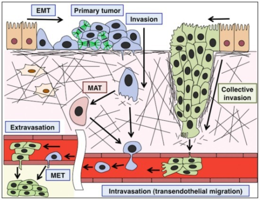 EMT-mediated invasion and collective invasion in cancer ...