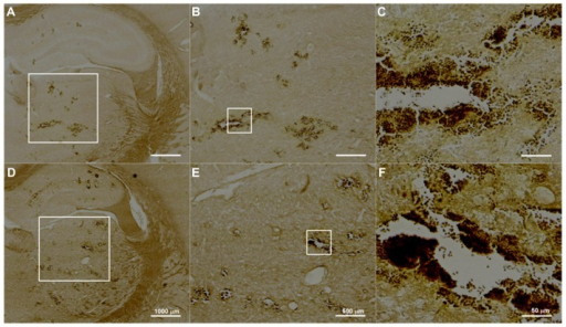 Examples of histological observations of TUNEL-stained sections treated with UCA doses of (A–C) 300 μL/kg and (D–F) 450 μL/kg sonicated at 2.86 W.Note: Many cells appear to be undergoing apoptosis in the sonicated brains.Abbreviation: UCA, ultrasound contrast agent.