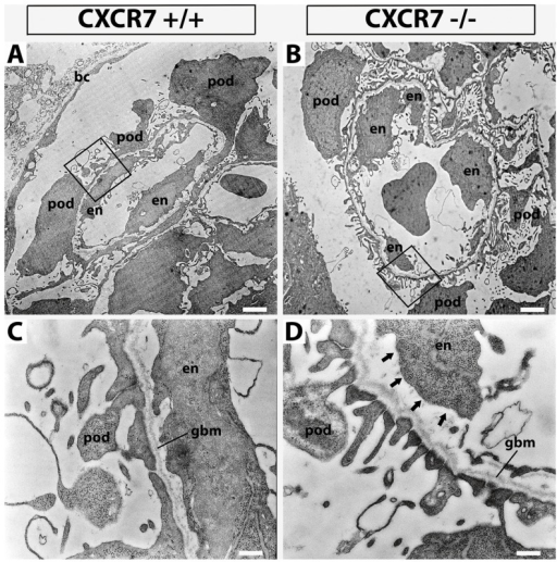 Transmission electron microscopic analysis of the glomeruli.Glomerular capillaries at 3.300× magnification (A,B) and details of the filtration barrier at 21.600× magnification (C,D; framing in A,B). CXCR7+/+ (C) and CXCR7−/− (D) showed no differences in general morphology and glomerular basement membrane (gbm) attachment of podocytes (pod). However endothelial cells (en) seemed to be detached from the gbm (arrows). Scale bars correspond to 2 µm (A,B) and 0.3 µm (C,D).