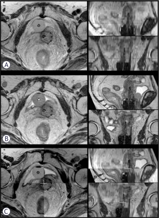 Post-insertion pelvic MRI. (A) Para-transverse 2D T2w FSE MR images were imported into the TPS (left). Para-sagittal and -coronal images were resampled from this data-set (right): due to the 3.9 mm slice thickness, their resolution is poor. (B) 3D MRI data-set was imported into the TPS. High resolution para-transverse (left), -sagittal and -coronal images (right) were resampled due to an isotropic voxel size of 1 mm. (C) Co-registration of the 2D para-transverse and 3D MRI data-sets.