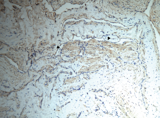 Geniculate ganglion tumor; the arrowheads indicate the presence of cells with elongated nucleus, eosinophilic cytoplasm organized in small bundles; positivity for smooth muscle actin (Immunohistochemical, 10 ×).