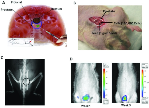 Orthotopic tumor generation in the rat prostate. (A) Tr | Open-i