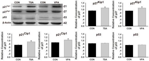 Effects of HDAC inhibitors on the expression of p21Cip1, p27Kip1, and p53 protein. After treatment of larvae with 0.1 μM TSA or 100 μM VPA for 48 h, protein extracts were prepared and subjected to western blot assay using antibodies against p21Cip1, p27Kip1, and p53. β-Actin was included as the control. Mean ± s.e.m. for three experimental replicates. *p < 0.05.