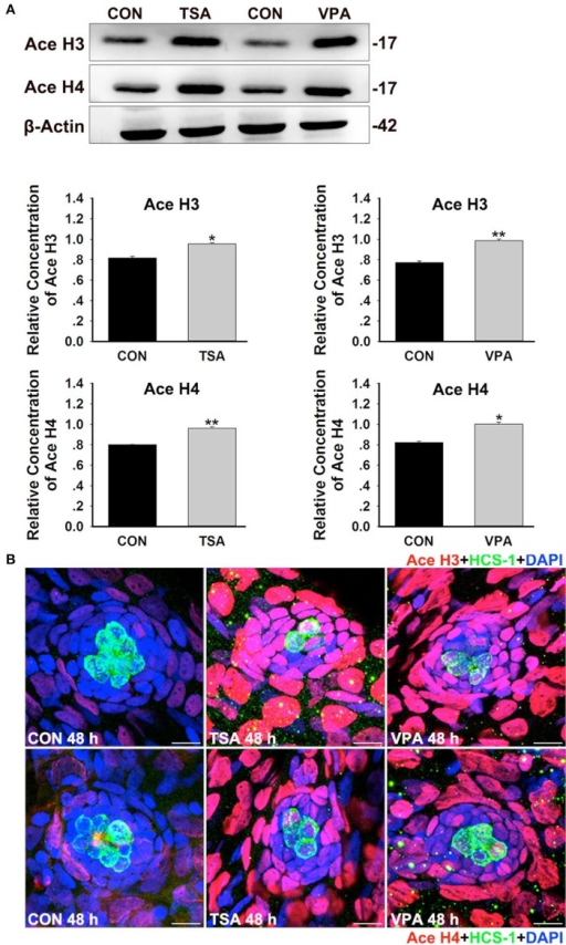 HDAC inhibition increases histone acetylation during HC regeneration. (A) Western blot analysis of acetylated H3 (Ace H3) and acetylated H4 (Ace H4) protein extracts from control and 0.1 μM TSA- or 100 μM VPA-treated larvae at 48 h after neomycin damage. β-Actin was included as the control. Mean ± s.e.m. for three experimental replicates. *p < 0.05. **p < 0.001. (B) Acetylation of histone H3 and H4 were stained (red) by Ace H3 and Ace H4 antibody. HCs were labeled with HCS-1 (green) antibody and nuclei were stained with DAPI (blue). Scale bar = 10 μm.